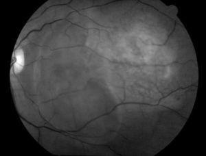 Fotografía de fondo de ojo con filtro verde. Destaca el área de desprendimiento seroso que involucra región macular. Se observa también la tumoración coroidea delimitada con vasos retinianos pasando por encima de la lesión.