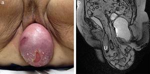 Prolapso vaginal y uterino de gran magnitud en mujer de 84 años de edad (a). En un plano sagital FIESTA obtenido en reposo (b) es visible el contenido de la bolsa protuberante: grasa peritoneal (peritoneocele), asas intestinales (enterocele) y el útero prolapsado (U).