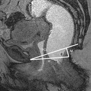 Líneas de referencia para establecer la clasificación HMO: línea pubococcígea (LPC), hiato pélvico/músculo puborrectal (líneaH) y descenso del suelo pélvico (líneaM).