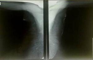 La visualización del hueco axilar está limitada por las estructuras óseas.