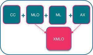 Protocolo de seguimiento tras cirugía conservadora: proyección XMLO en sustitución de las proyecciones MLO y AX.