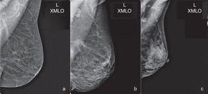 Resultado de la proyección XMLO con la representación completa de la axila: se reconoce el músculo pectoral menor (pequeña banda o región triangular muy radiopaca paralela al músculo pectoral mayor) y la mayoría de los ganglios axilares.