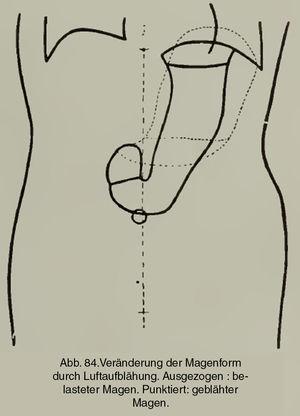 Representación de la posición natural del estómago en bipedestación. En línea punteada, la posición morfológicamente alterada que adopta con el llenado de aire (Groedel FM. Atlas und Grundriss der Röntgendiagnostik in der inneren Medizin. München: JF Lehmann's Verlag; 1909. p. 191).