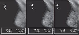 Patrón 5. Las mamas muy densas permitieron la alteración de parámetros de elaboración dentro de un rango muy amplio sin riesgo de perder información, consintiendo la penetración de las densidades.