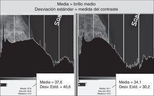 Los histogramas comparativos del mismo mamograma con diferentes variaciones del valor de S presentan una leve variación de distribución de los grises medianos, conservando la misma amplitud de la escala de grises.