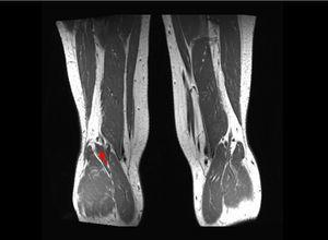 Músculo accesorio presente en el margen lateral del hueco poplíteo derecho (flecha gris).