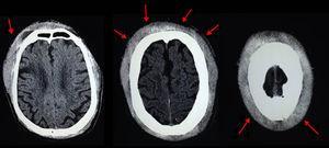La imagen de TC craneal muestra el engrosamiento subcutáneo difuso que rodea a la calota craneal (fechas).