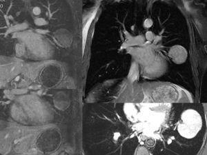 Angio-RM en cortes axiales: muestra con más detalle la irrigación arterial por captación de contraste secuencia coronal single shot fast spin eco (SSFSE), fiesta anatómico y T1 dinámico.