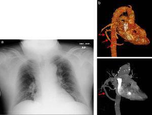 a) Rx de tórax AP. Se objetiva una estructura vascular de morfología tubular en lóbulo pulmonar inferior derecho, y b) TC torácica tras la administración de CIV, reconstrucción en volumen rendering (imagen superior) y reconstrucción en MIP «proyección de máxima intensidad» (imagen inferior). Estas imágenes nos confirman la presencia de un vaso anómalo que comunica las venas pulmonares con la vena cava inferior (flechas).