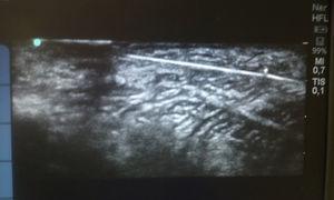 Imagen ultrasonográfica de los cuerpos extraños. El pequeño punto situado sobre las agujas de coser representa la aguja usada por nuestra parte para la localización de los cuerpos extraños.