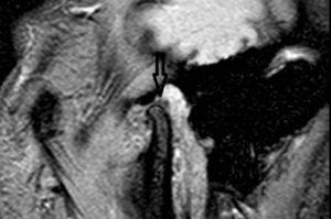 Boca abierta. La parte más posterior del disco articular queda atrapado entre la eminencia temporal y el cóndilo mandibular. Esto impide alcanzar una apertura bucal máxima.