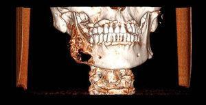 Reconstrucción 3D. La lesión se extiende desde el primer premolar hasta la región subcondilea.