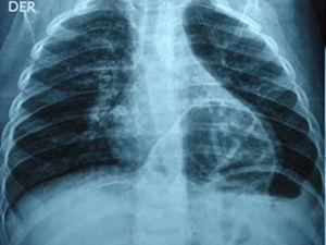 Thoracic X-ray with preoperatorative Morgagni's hernia.