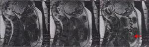 Imagen de la resonancia magnética prenatal.