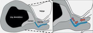Trayecto canal cervical en forma de «J». Las flechas muestran el movimiento que debe realizarse durante la introducción de la pinza hasta el orificio cervical interno.