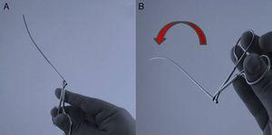 Rotación de 180˚ de la pinza necesaria cuando el útero es retroverso.