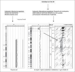 Ejemplos del uso de Karyoarray® 8x60K en muestras de rutina clínica prenatal.