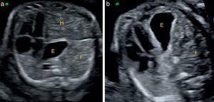 Valoración de la presencia de herniación hepática. a) HDC izquierda con herniación hepática. b) HDC izquierda sin herniación hepática. E: estómago; H: hígado; I: asas intestinales.