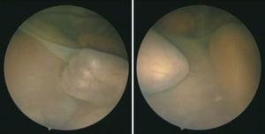 Visión fetoscópica de la placenta desde el saco del receptor.Se aprecia la membrana divisoria que marca el límite del donante, con vasos sanguíneos que la atraviesan. En más oscuro, azulado, y saltando por encima de los otros están las arterias, mientras que las venas se identifican como más rojizas, ya que llevan una mayor saturación de oxígeno.