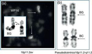Variantes eucromáticas detectadas posnatalmente. a) Bandas G (BG) y pintado cromosómico (WP16) de un 16p11.2ev. b) Bandas G (BG) y C (BC) de un pseudodicéntrico 16p11.2-q11.2.