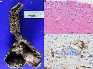 (A) Bile duct cystic wall and atrophic gallbladder. (B) Presence of malignant cell trails infiltrating the cystic wall. (C) Lymphatic permeation of the neoplasia demonstrated by CD-31 marker.