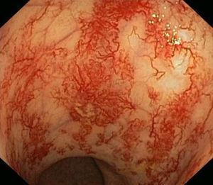 Endoscopic appearance of radiation proctitis with an area of ulceration.