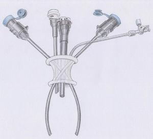 The da Vinci single-access technology for robot-assisted cholecystectomy.