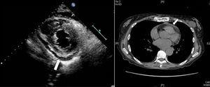 (A) Echocardiogram 2D; parasternal short-axis plane: posterior pericardial effusion (arrow). (B) Thoracic CT: evidence of sternal fracture, as well as mild pericardial effusion (arrow).