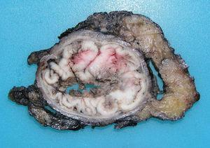 Cross-sectional surface of an adenocarcinoma (ADC) originated in the mucosa of the superior portion of the anal canal with circumferential and endoluminal growth.