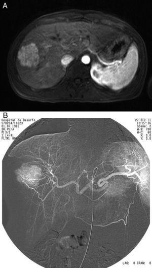MRI and angiography prior to embolization.