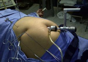Laparoscopic cholecystectomy with a 12mm umbilical port, aided by reins and percutaneous needles.