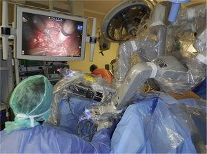 Robot anchored in the transanal port over the left hip of the patient.