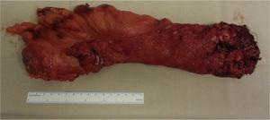 Surgical specimen with total mesorectal excision.