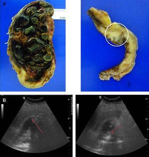 moderately differentiated carcinoma (T2). (A) Open gallbladder invaded by multiple faceted stones on a necrotic bed. Imaging of the gallbladder section in the background. A neoplasm infiltrating the muscular layer can be observed. (B) Diffuse and irregular gallbladder wall thickening with non-uniform echoes and acoustic shadow content.