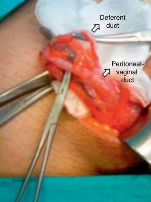 Intra-operative image demonstrating the elements of the cord and the peritoneal-vaginal duct.