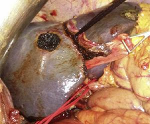Knotted tourniquet after it was run between the middle and left liver veins, and extraglissonian at the left liver pedicle. The left liver artery remains tagged.
