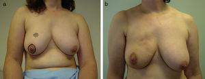 Deformity due to fat necrosis. This patient has a multinodular deformity in the right upper pole after removing a carcinoma through an areolar access, due to local fat necrosis following breast irradiation.