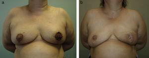 Discoloured areola after superficial ischaemia in a bilateral vertical mammoplasty.