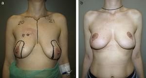 Excessive exposure of the lower pole after a vertical pattern. An excessive elevation of the nipple–areola complex over the inframammary fold has originated this excessive exposure of the lower pole.