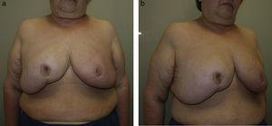 Redundant skin envelope after an oncoplastic reduction mammoplasty in gigantomastia.