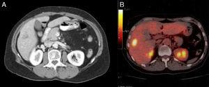 (A) Preoperative CT scan and (B) preoperative PET.