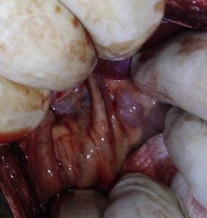 Bile duct of the pig.