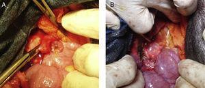 (A) Tube extraction and (B) hepaticojejunal anastomosis.