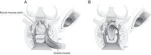 (A) Implantation of buccal mucosal patch over the urethra, and rectal suture in two planes. (B) Interposition of gracilis muscle.