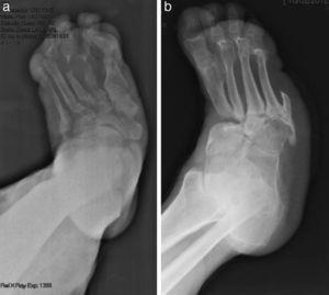 (a) X-ray showing Sanders' Charcot Foot type I affecting the metatarsal–phalangeal joints. (b) X-ray showing Sanders' Charcot Foot type II affecting the Lisfranc joint. Prior amputation of the 5th toe.