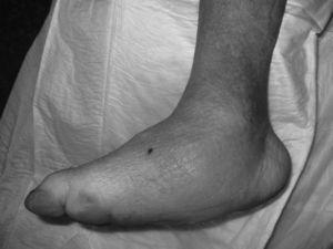Charcot Foot with complete loss of the arch of the foot (rocking-chair foot).