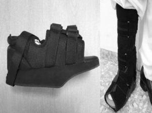 (A) Orthopaedic shoe with forefoot offload, used in patients with Sanders' Charcot Foot type I. (B) Orthosis of arch offload (CAM Walker®) used in patients with Sanders' Charcot Foot types II, IIIor IV.