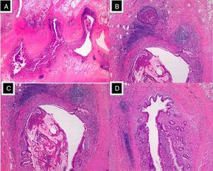 """(A) Multiple """"false"""" diverticula on the mesenteric edge of the distal end of the appendix (HE, 4×); (B and C) diverticular wall made up of mucosa and muscularis mucosae, pushing the muscularis propria and forming eosinophil abscesses. (HE, 20×); (D) diverticula occupied by mucus (mucocele) and a large eosinophil content (HE, 40×)."""
