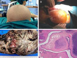 (A) Massive abdominal distension; (B) mucinous material from the cavity (PMP); (C) macroscopic image of the ovarian mucinous tumour; (D) mature teratomatous tissue associated with the mucinous tumour (Haematoxylin–eosin, 4×).