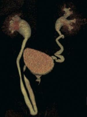 3D reconstruction of a multislice urography showing the pathway of both ureters and right hydronephrosis associated with an ipsilateral ureteral hernia.